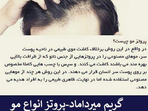 پروتز انواع مو-میرداماد